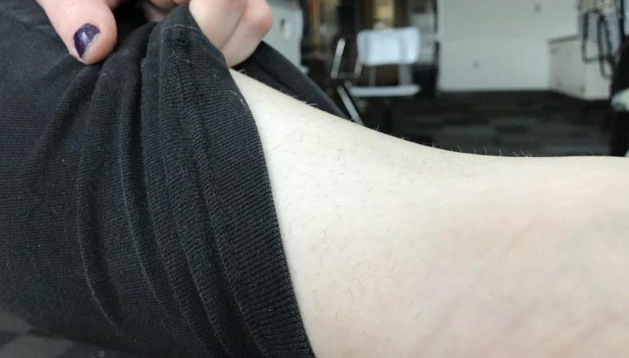 My+Hairy+Legs+Can+Help